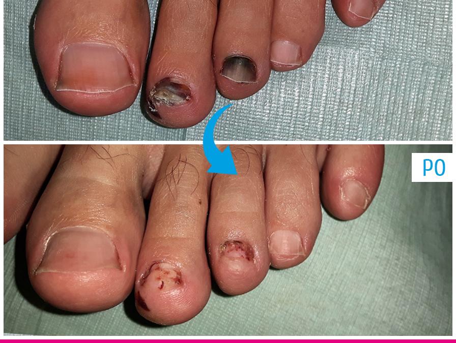 Najczęstsze problemy dotykające stopy biegaczy
