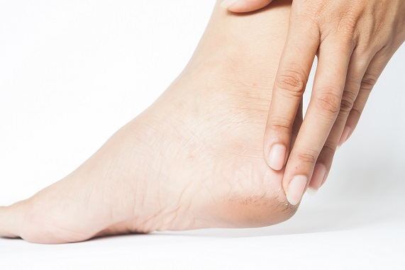 O szkodliwości preparatów do stóp stosowanych w warunkach domowych.